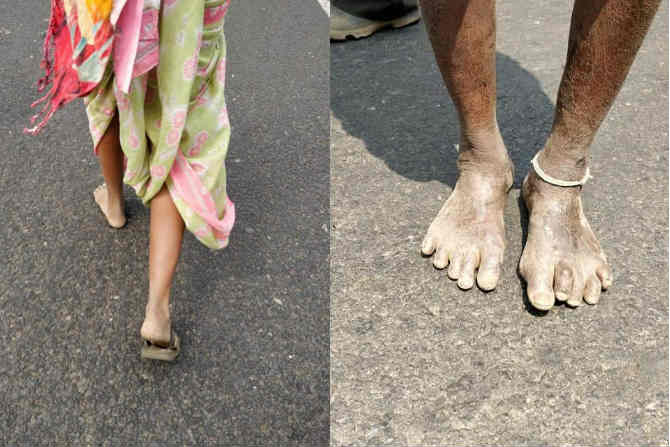 अन्नदाता, बळीराजा म्हणून ओळखल्या जाणाऱ्या शेतकरी मित्रांच्या मोर्चाने मुंबई गाठली आणि प्रत्येकाच्या नजरा पुन्हा एकदा शेतकऱ्यांवरच खिळल्या. (छाया सौजन्य- Alka Dhupkar)
